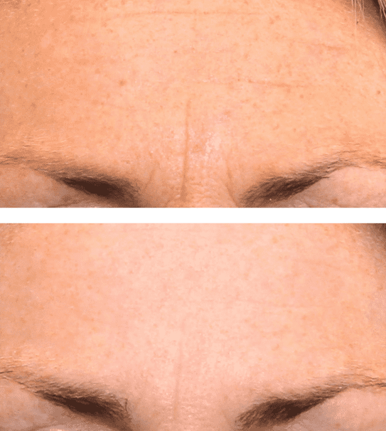 Dermatude A Unique Anti Aging Treatment With Clinically